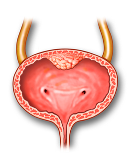 bladder_ureteral_cancer-1
