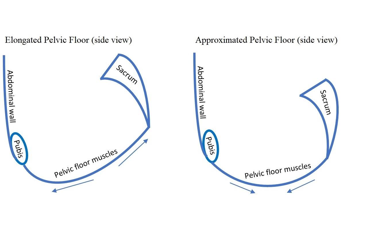 Pelvic floor and tilt